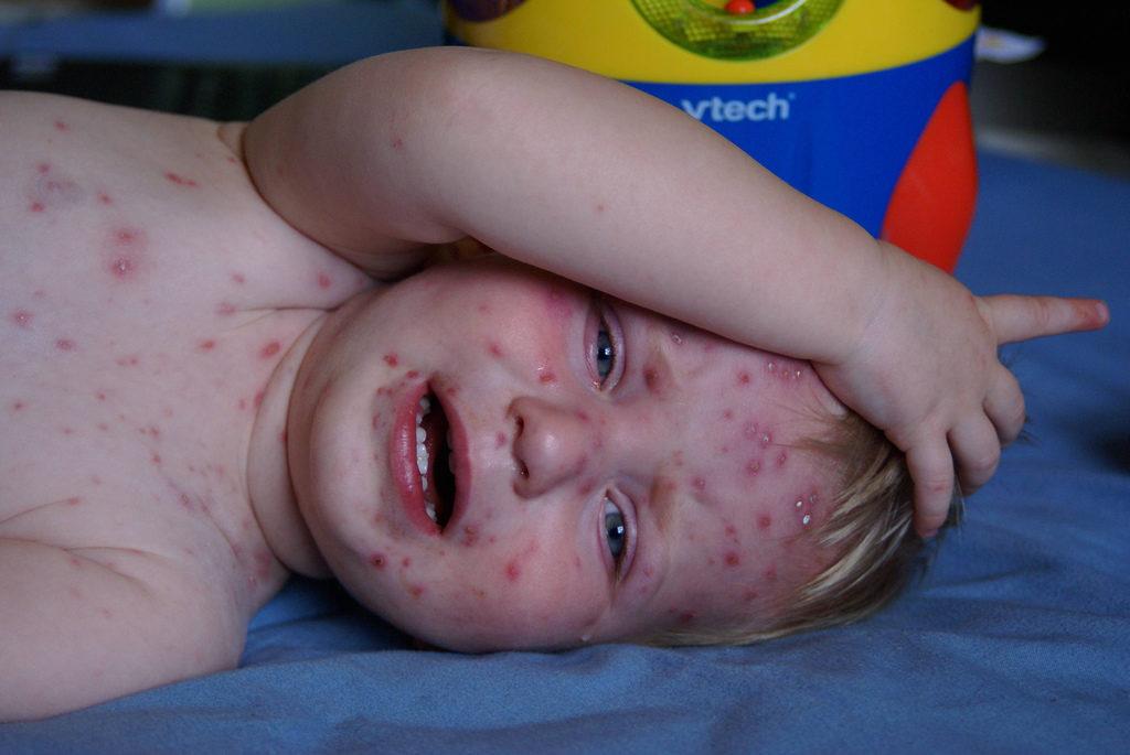 Tratamiento de enfermedades eruptivas en niños