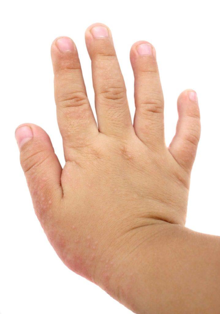 Prevención: cómo evitar la erupción de la dermatitis atópica