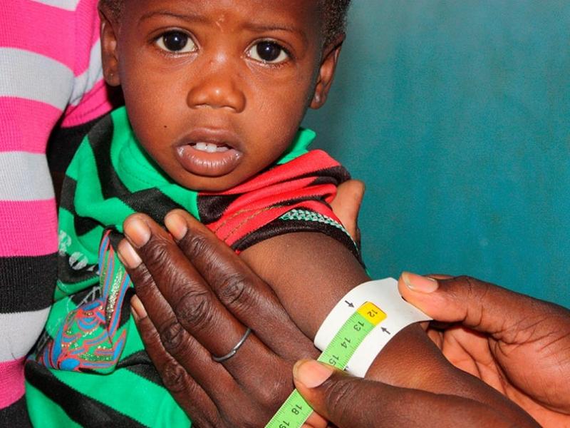 Foto Desnutrición infantil: datos del hambre en el mundo